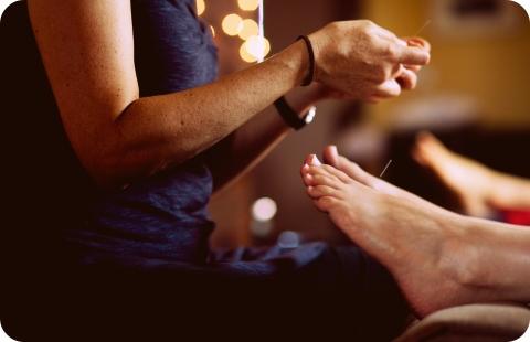 acupuncture-needle-feet-hand
